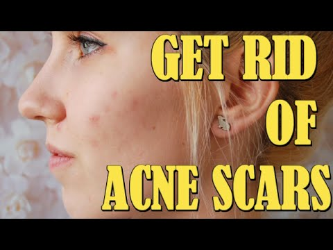 Operation scars how to get rid